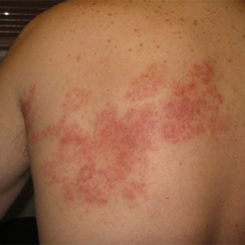 Post Herpes Zoster Pains