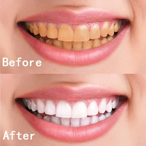 dental-teeth-whitening